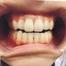 ピュア学園前店です。歯のホワイトニング