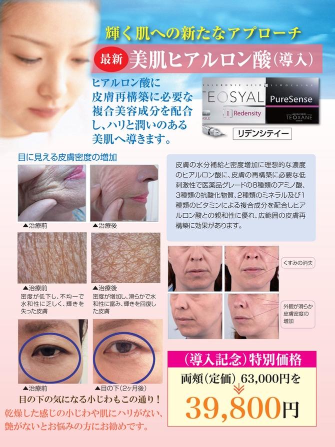 bihada-hiaru1-thumb-800x1067-712-670.jpg