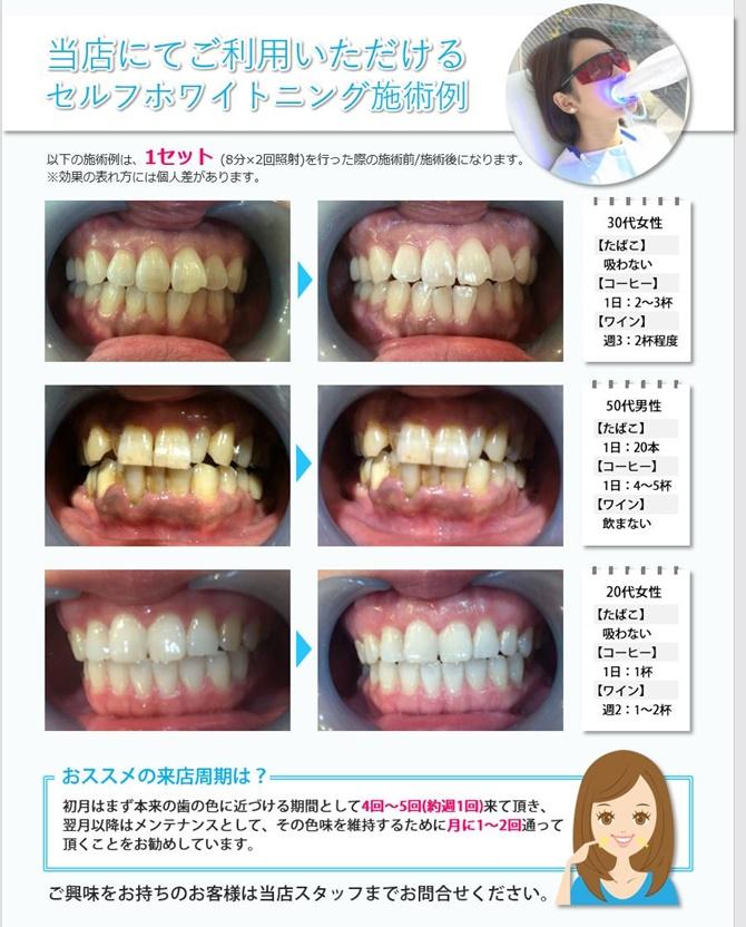 歯の美白ホワイトニング エステサロンピュア奈良