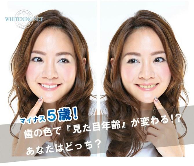 white-hikaku670.jpg
