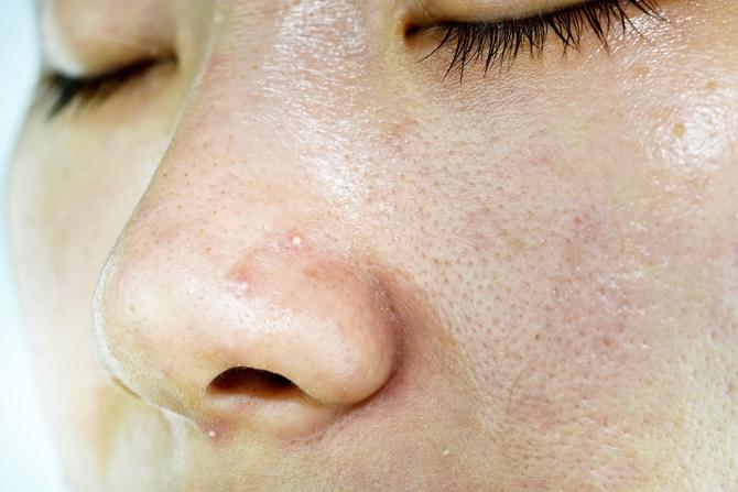毛穴の開き詰まりにフェース化粧品 エステサロンピュア奈良